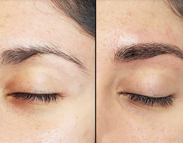 eyebrow microblading cost in chennai