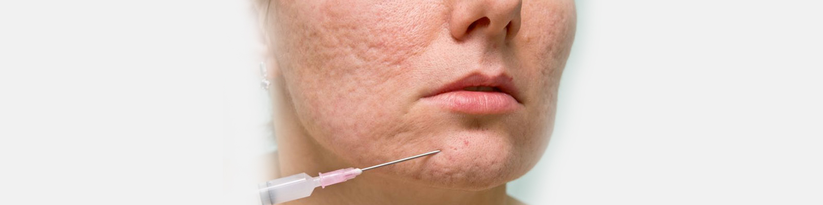 PRP Injection for acne scar