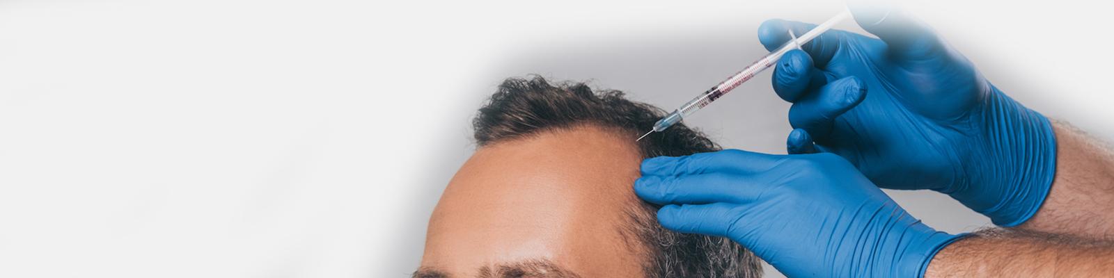PRP for Scalp (Hair)